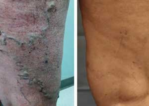 Varicose Vein Treatment - Before & After